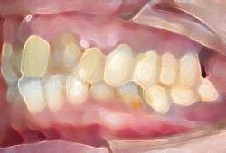 入れ歯によって噛み合わせを改善した例