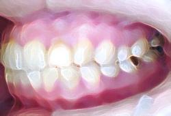 難治性、再発性の虫歯や根の病気で苦しんだ例